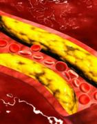 Productos para Colesterol y Triglicéridos