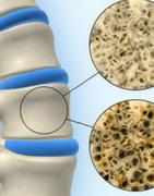 Productos para Osteoporosis Naturales